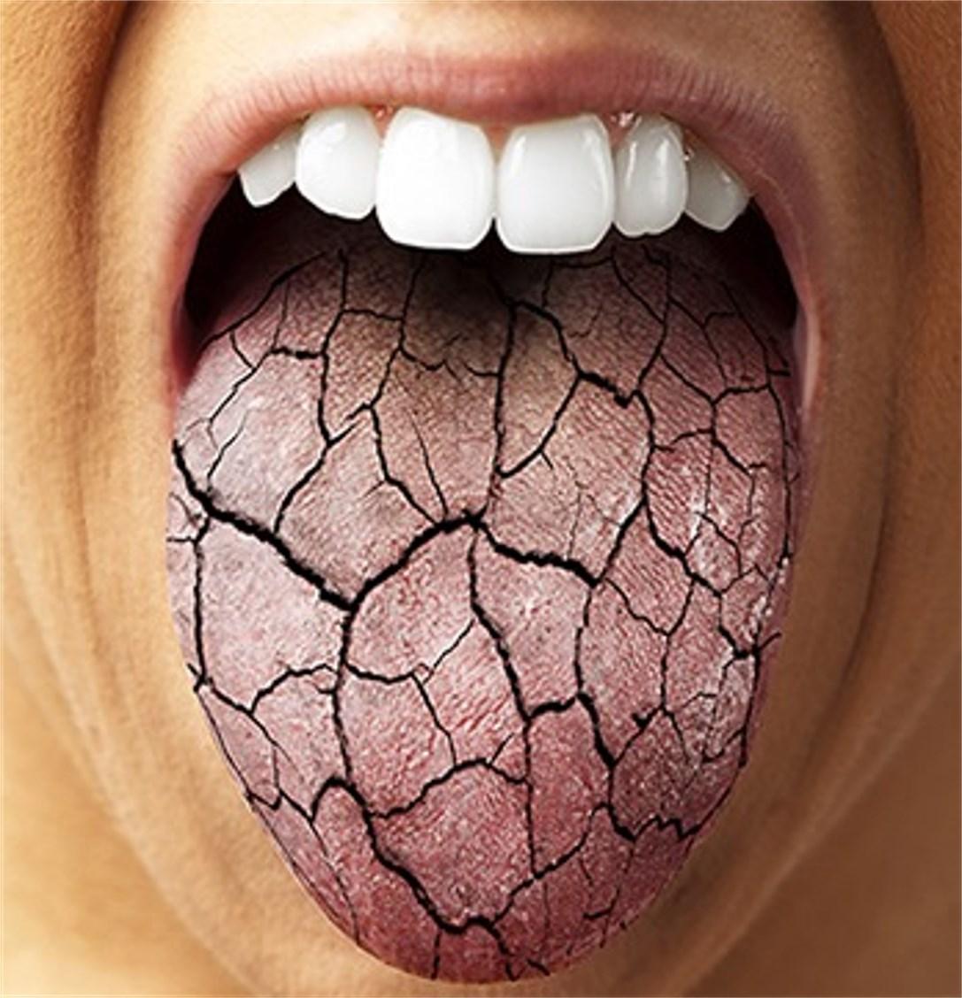 Dry Mouth dentist in walla walla oral care cavity dr. patty martin